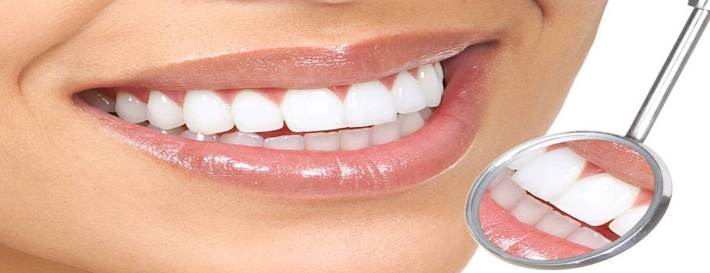 Д-р Георгиев - Стоматолог / Зъболекар Бургас Избелване на зъби