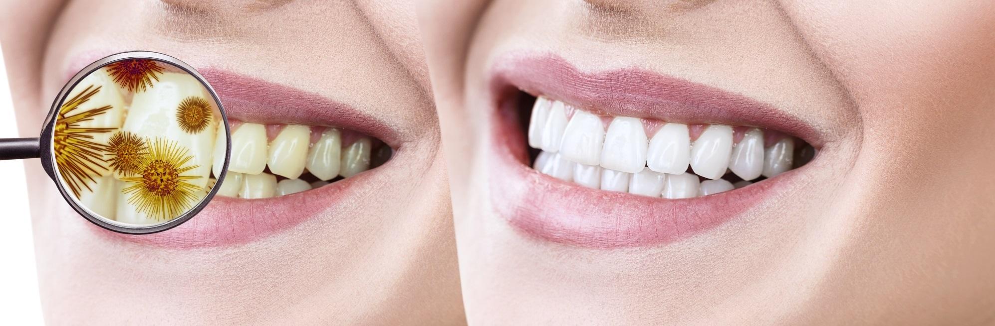 Зъбен камък Бургас